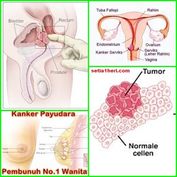 penyakit kanker rahim, payudara, prostat dan tumor