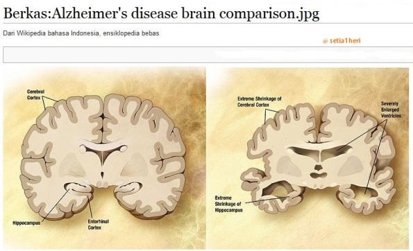penyakit alzheimer